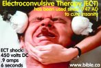 especial psychiatry-history-cure-electroconvulsive-therapy-ECT-electroshock-therapy-electric-treatment-jack-nicholson